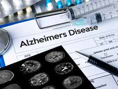 World Alzheimer's Day 2017: Top 7 Unknown Facts About Alzheimer's