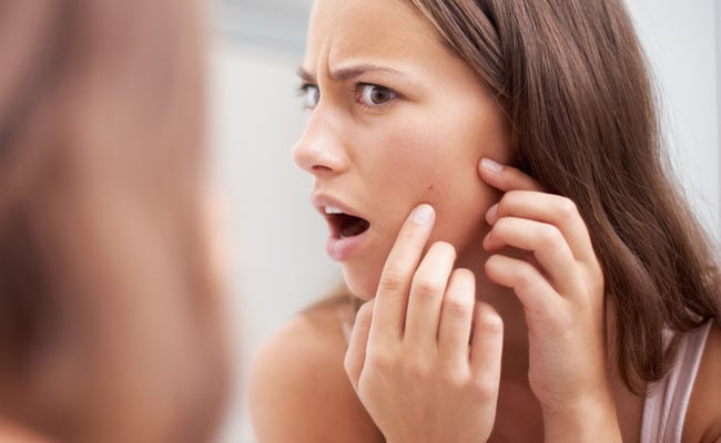 Home Remedies For Acne: Try These Kitchen Ingredients To Fight Acne; Know Ways To Use
