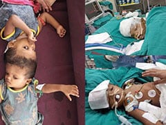 Conjoined Twins From Odisha Successfully Separated In Marathon Surgery