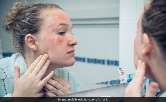 Celeb Dermatologist Recommends 4 Tips To Prevent Eczema Flare Ups During Winter