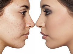 7 Foods That Can Cause Acne