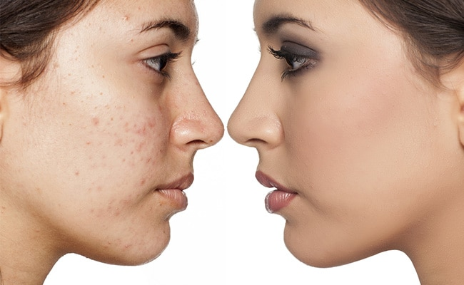5 Foods To Avoid If You Have Acne
