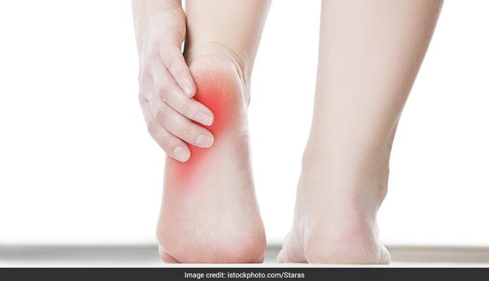 5 Ways To Soothe Heel Pain Naturally
