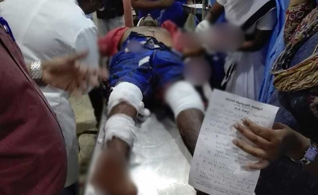 RSS Worker Injured In Attack By Suspected Left Activists In Kerala: Cops