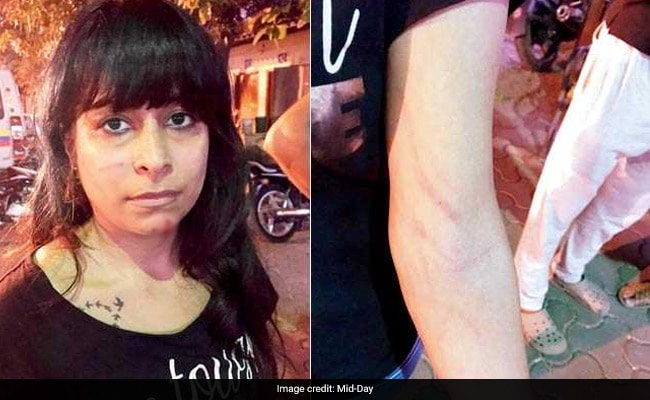 Sisters Beaten, Molested By Dindoshi Society Residents In Mumbai For Feeding Dogs