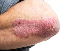Psoriasis And Skin Cancer: What Are The Symptoms And How They Are Different From Each Other