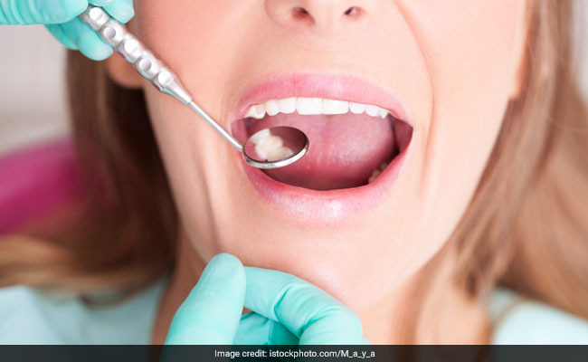 Reasons Why You Should Take Care Of Your Oral Health: Study