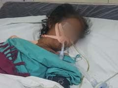 Doctors Remove 1.5 Kg Ball Of Hair From Indore Woman's Stomach