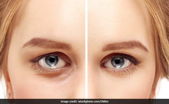 Say Goodbye To Puffy Eyes And Dark Circles With These Remedies