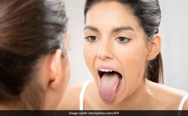 7 Possible Reasons Why There Are Dark Spots On Your Tongue