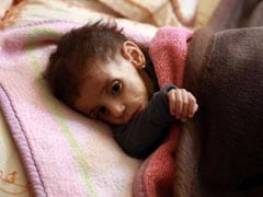 'Start Of Tragedy': Babies Wasting Away In This Syrian Pocket