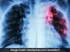 Tuberculosis: दुनियाभर में होने वाली मौतों के 10 बड़े कारणों में से टीबी की बीमारी भी एक