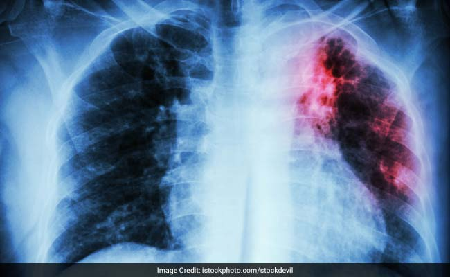 New global effort launched to end tuberculosis by 2030
