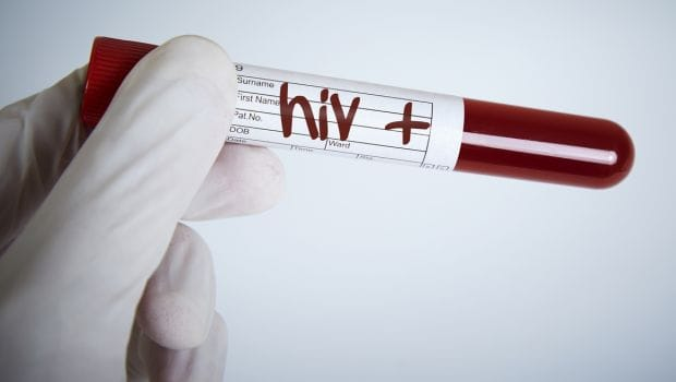 Watch Out For These Early Signs Of HIV