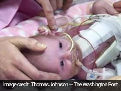 Baby Was Born With Her Heart Outside Body - And Survived