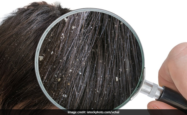 This Simple Yet Effective Home Remedy Is All You Need To Keep Dandruff Issues At Bay