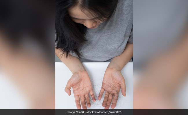 Hair Loss In Women May Indicate Increased Risk Of Fibroids