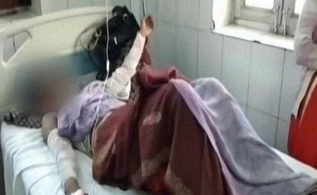 Minor Raped For Over 2 Months, Then Set On Fire in UP's Mainpuri