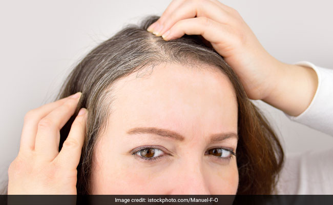 5 Causes Of Premature Greying Of Hair