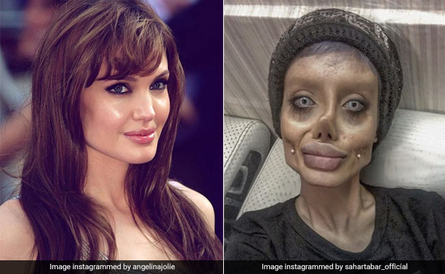 Teen has 50 surgeries to look like Angelina Jolie