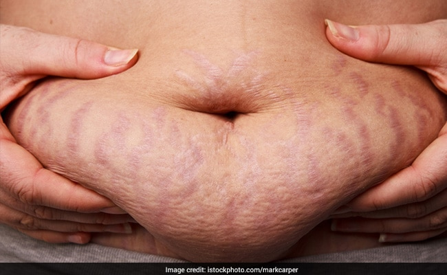Terrific Tips To Reduce Stretch Marks After Losing Weight