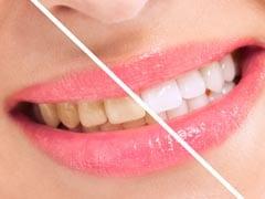 चमकेंगे दांत तो मुस्कान होगी बेहतर, दांतों को सफेद बनाने के 7 असरदार तरीके