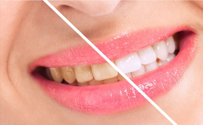 दांतों को सफेद और चमकदार बनाने के 7 असरदार तरीके