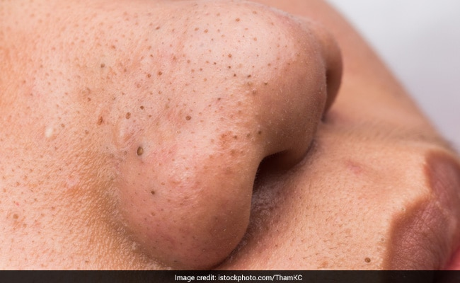 How to Remove Blackheads from Nose: 5 Natural Masks and Scrubs