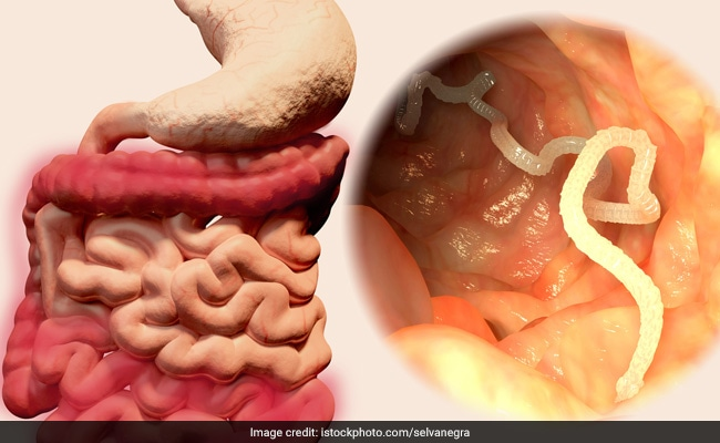 Shocking! Hookworm Sucked 22 Litres Of Blood From A 14-Year Old In 2 Years