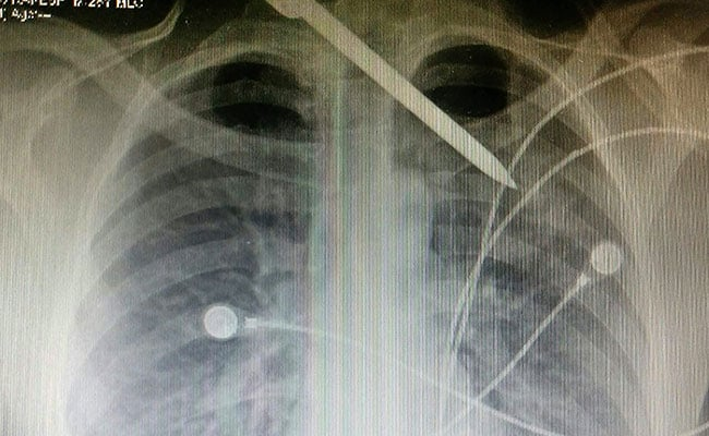 ice pick x ray pti