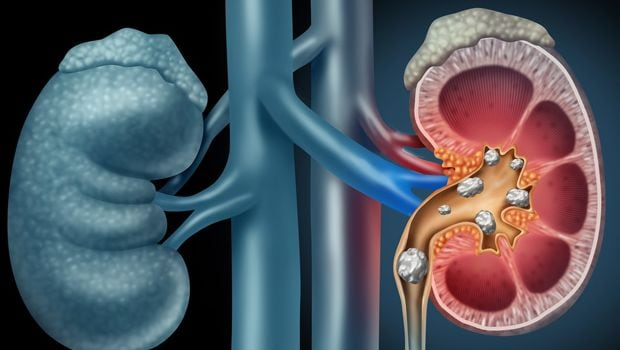 Foods To Eat And Avoid In Case Of Kidney Stones