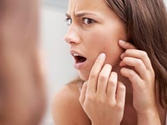 Sudden Acne Breakout: Causes And Tips For Prevention