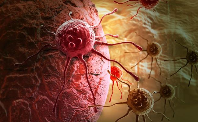 World Cancer Day 2018: क्या होता है कैंसर, जानें इसके लक्षण, इलाज और कारण