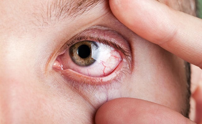 Here's How You Can Get Rid Of Dry Eyes