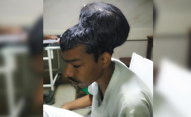 Mumbai Man's Huge Tumour 'Sat Like A Head On Top Of Another Head'