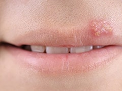 6 Tips To Treat Herpes Naturally And Prevent Spreading