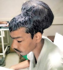 Mumbai Doctors Remove Tumour Weighing 1.8 Kg From Man's Head