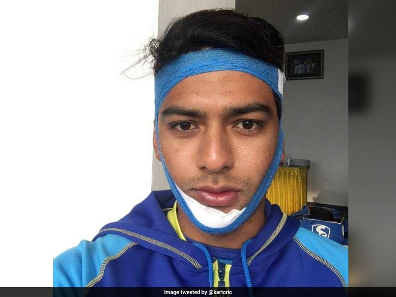 Unmukt Chand Does An Anil Kumble, Plays With Broken Jaw