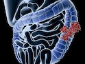 Lower Exposure To UVB Light May Increase Colorectal Cancer Risk, Study Suggests