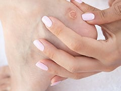 7 Best Home Remedies For Calluses And Corns