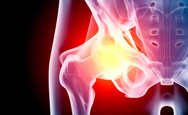 What Are The Causes Of Groin Pain And Home Remedies To Deal With It
