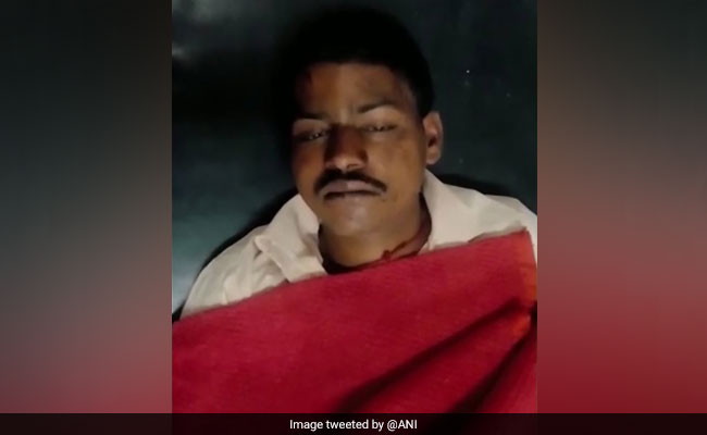 Man Allegedly Stripped, Thrashed For Eating Too Much At Dhaba