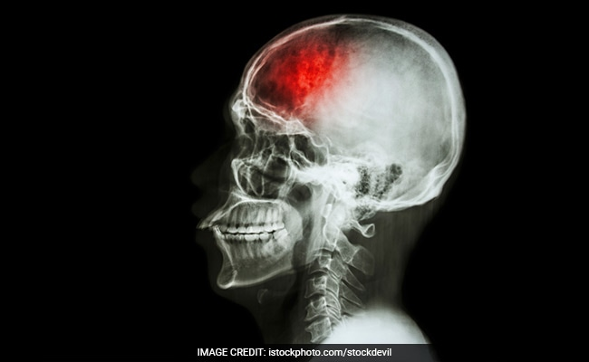 Common Warning Signs And Symptoms Of Stroke You Must Know To Save A Life