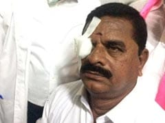 Congress Lawmaker Threw Headphone In Telangana Assembly. It Hit Council Head's Eye