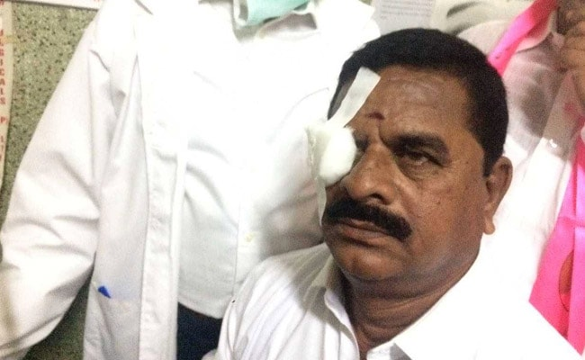 Council chairman Goud hit in eye by headphone thrown by Congress