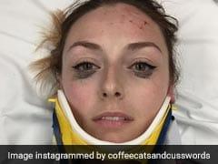 एक्सिडेंट की फोटोज़ VIRAL, चोट नहीं आंखों का मेकअप बनी वजह
