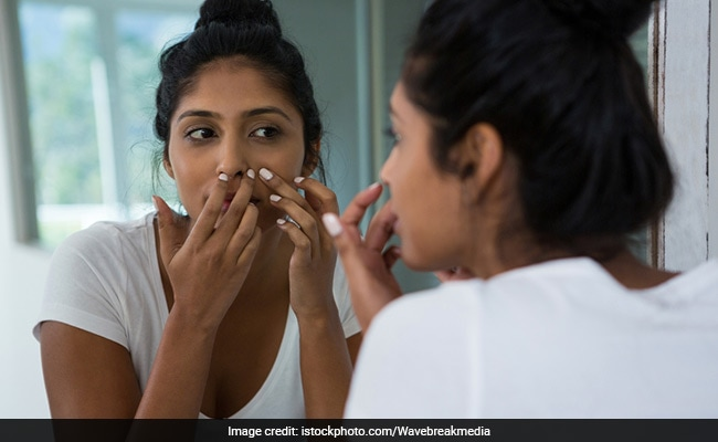 Poor Dietary Habits, Increased Stress And Harsh Skincare Routines Linked With Acne, Says Study
