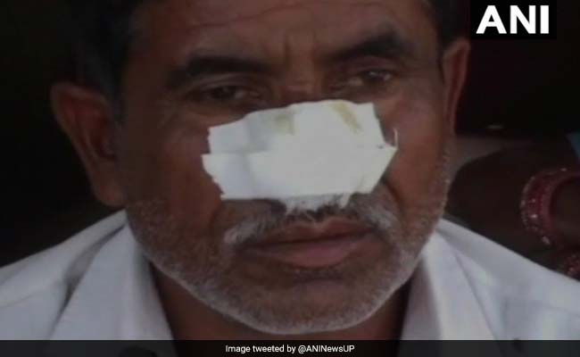 UP Man Bites Off Brother's Nose, Attacks Father After Denied Money For Alcohol