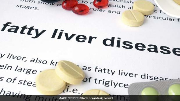 5 Natural Ways To Fight Non-Alcoholic Fatty Liver Disease