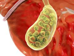 Gallstone Diet: 6 Easy Foods That Prevent Gallstones
